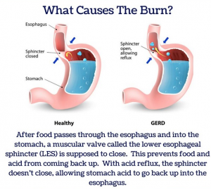 Natural Ways To Relief Heartburn